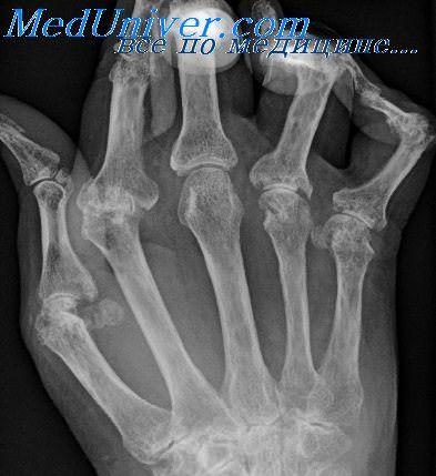 Рентгенограмма при ревматоидном артрите