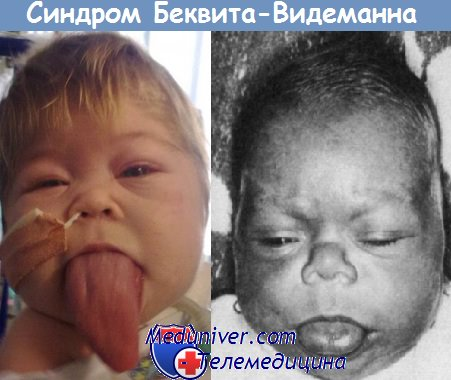 экзофтальм у новорожденного