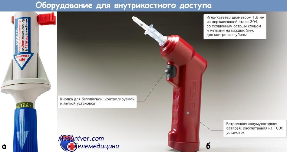 Оборудование для внутрикостных инфузий
