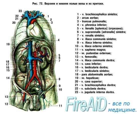 перевязка нижней полой вены