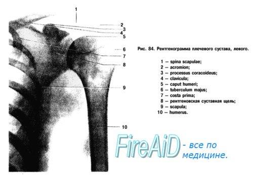 Рентгенограмма плечевого сустава
