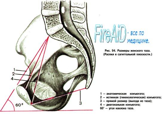 Форма лобкового угла. Измерение формы лобкового угла.