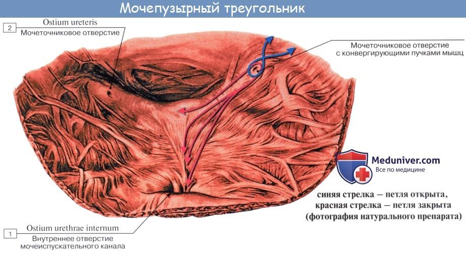 Верхняя стенка мочевого пузыря thumbnail