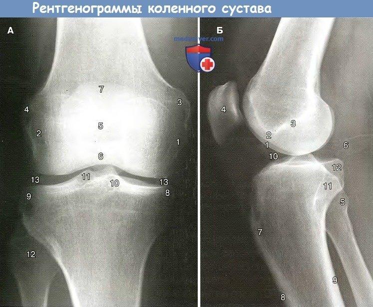 Рентгенограммы коленного сустава в норме