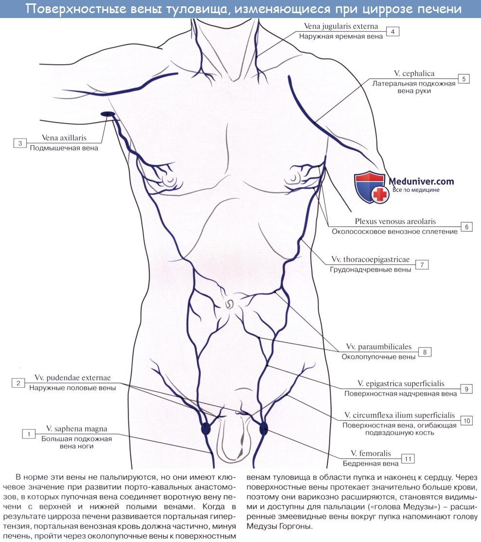 Анатомия: Портокавальные и кавокавальные анастомозы. Голова медузы