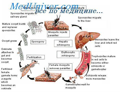 Шизонты и гамонты малярии. Пораженные малярией эритроциты
