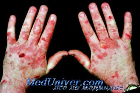 Поздняя кожная порфирия. Диагностика и лечение