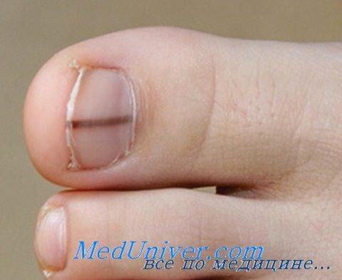 Продольная меланонихия и подногтевая меланома. Диагностика и лечение
