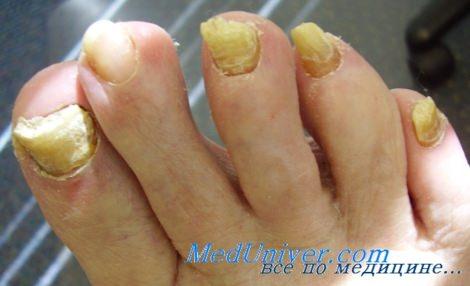 онихомикоз - грибок ногтей