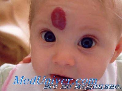 гемангиома у детей