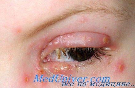 поражение лица (вокруг глаз) вирусом простого герпеса