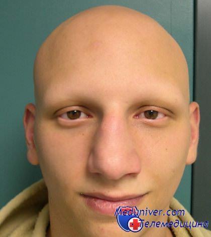 Алопеция - облысение после химиотерапии