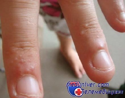 Дисгидроз кистей рук - симптомы и методы лечения