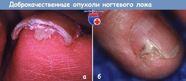 Доброкачественные опухоли ногтя и возле ногтя