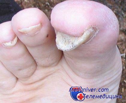 Уксус от грибка между пальцев ног