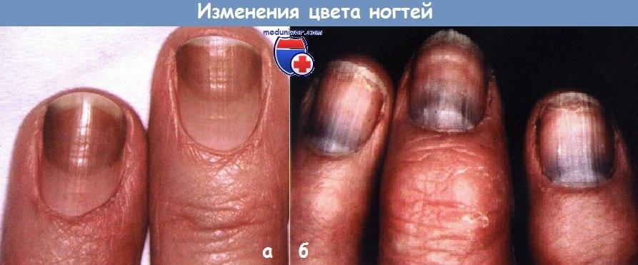 Изменения цвета ногтей