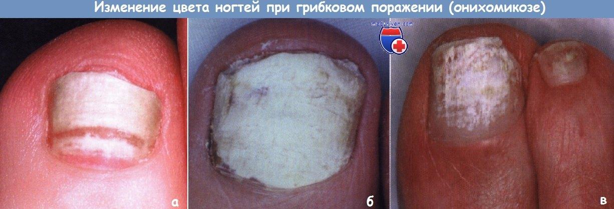 Изменения цвета ногтей при грибке (онихомикозе)