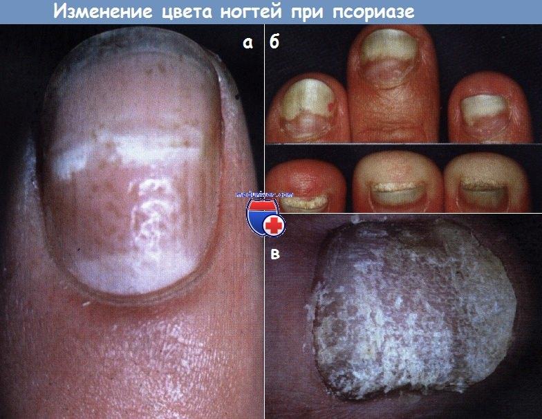Лечение Псориаза Чебоксары