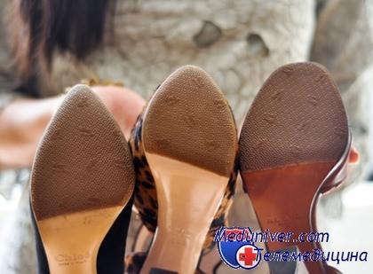 уход за обувью с грибком