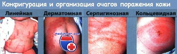 Оценка организации и конфигурации очагов поражения кожи