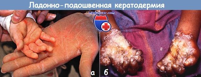 Ладонно-подошвенная кератодермия