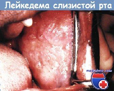 Лейкоэдема слизистой рта