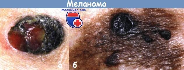 Этиология и патогенез меланомы кожи thumbnail
