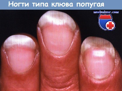 Ногти типа клюва попугая