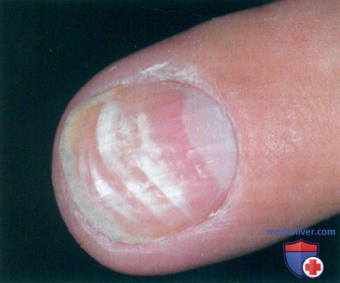 Появление пятен, полос на ногтях в норме
