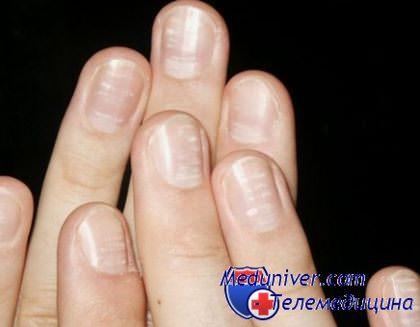Ногти белые пятна