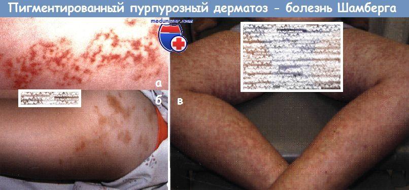 Лимфоцитарный васкулит (пигментированный пурпурозный дерматоз ...