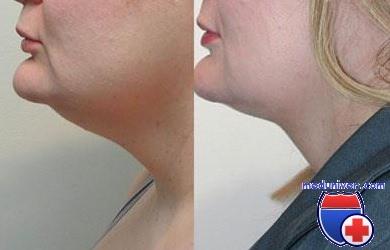 Как подтянуть дряблую шею и овал лица - платизмопластика