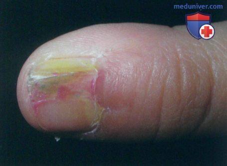 Подногтевая гематома - травма ногтя