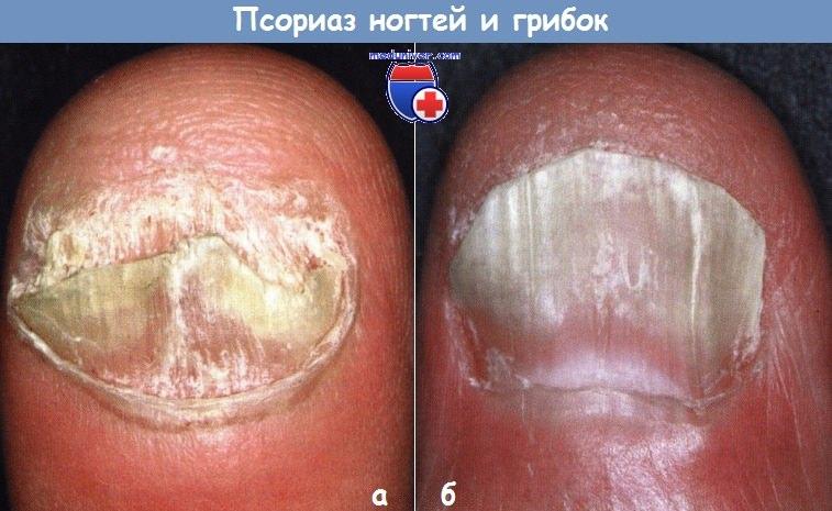 Псориаз ногтей или грибок как отличить на фото