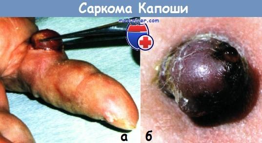 Отличие гемангиомы от меланомы thumbnail