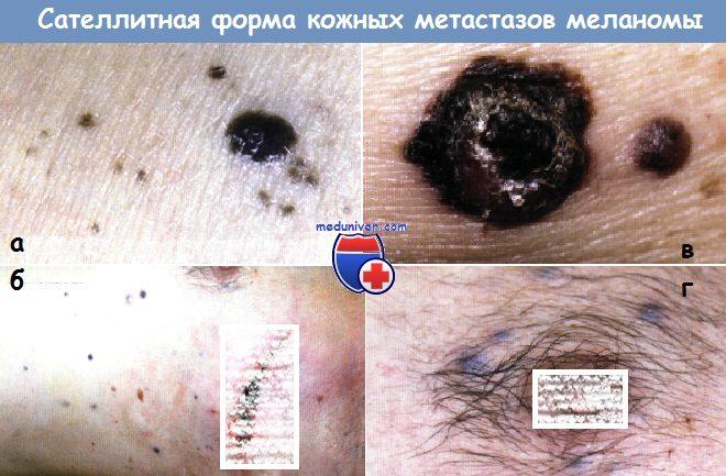 Сателлитная форма кожных метастазов меланомы