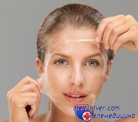 шелушение на коже лица