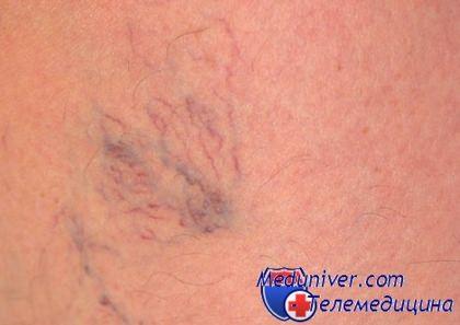 Лечение варикоза вен на ногах народными