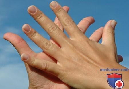 Сухость и шелушение рук