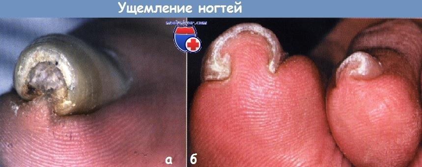 Ущемление ногтей