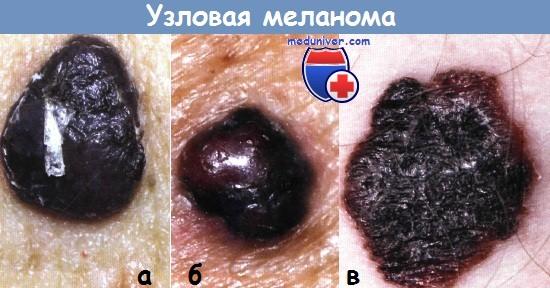 Тактика хирурга при меланоме (malignant melanoma)
