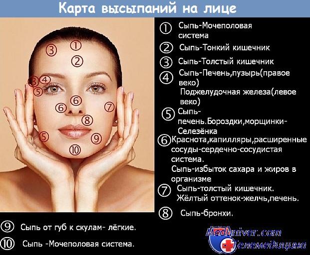 Прыщи при эндометриозе