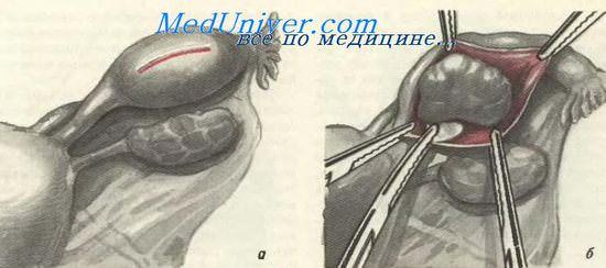 Послеоперационная Диета После Внематочной Беременности. Питание после операции по удалению внематочной беременности