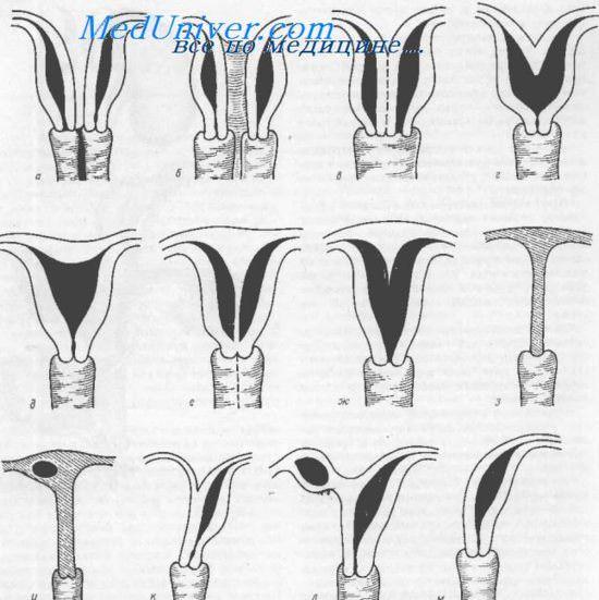 Види женских гениталий фото фото 317-860