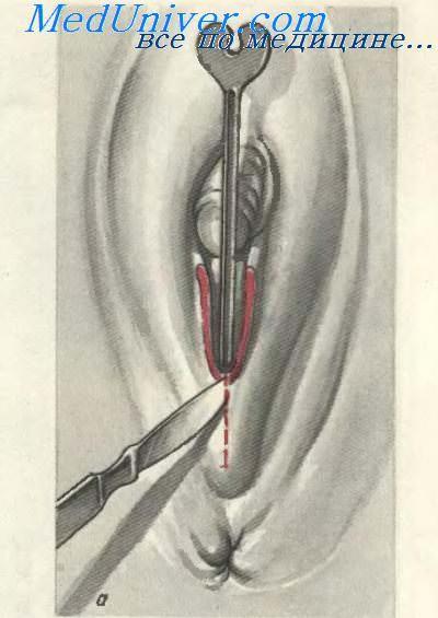 фото увеличенного клитора