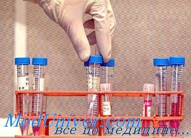 Показатели спермы для инсеминации