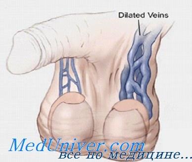 расширение вен семенного канатика симптомы
