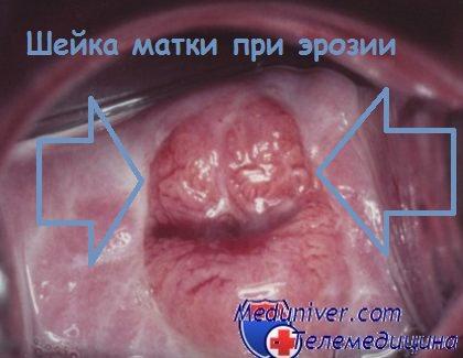 Жен секс при климаксенуфиброма матки