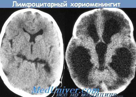 лимфоцитарный хориоменингит