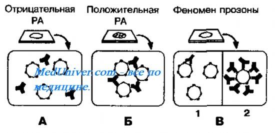 Механизм РА описывает «теория